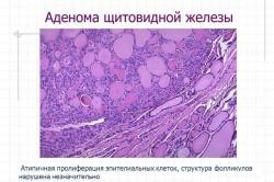 Схема аденомы щитовидной железы
