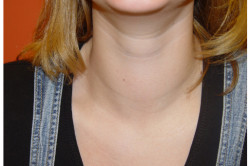 Увеличение щитовидной железы при тиреоидите