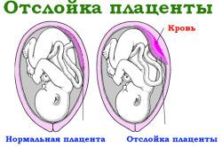 Отслойка плаценты - следствие гипотиреоза